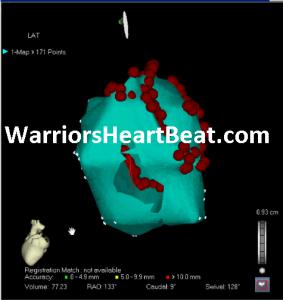 WarriorsHeartScan2WHB