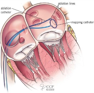 pulmonary-vein-procedure
